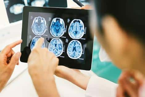 brain injury attorney Alberta 3